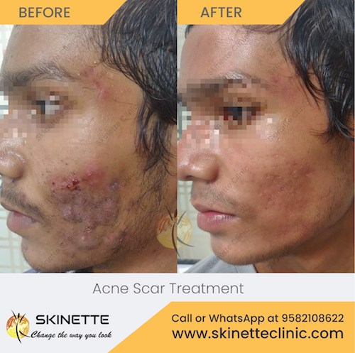 acne-scar-treatment-before-after-results-15