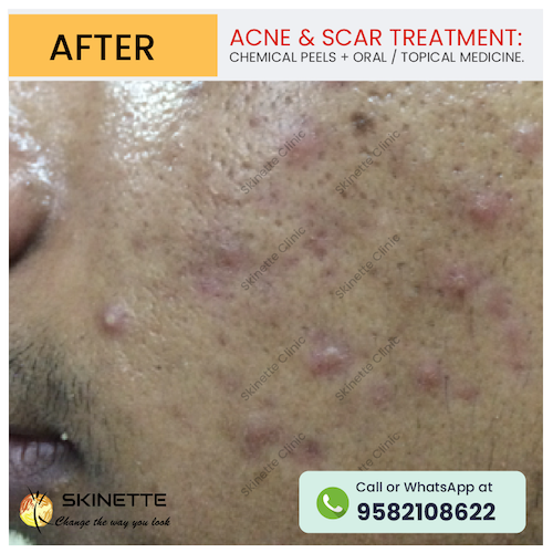 acne-scar-treatment-before-after-results-22