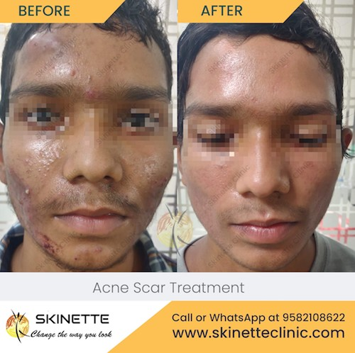 acne-scar-treatment-before-after-results-11
