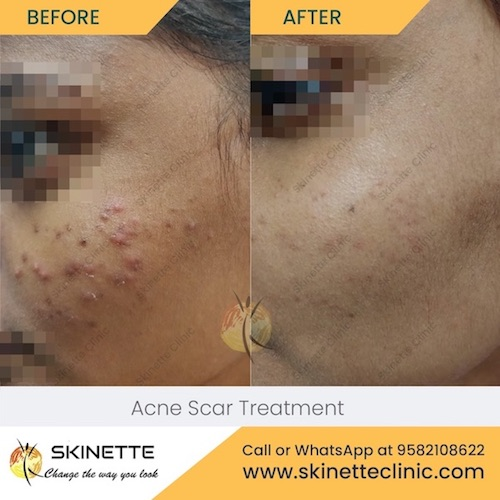 acne-scar-treatment-at-skinette-clinic-best-skin-doctor-in-faridabad-dermatologist-43